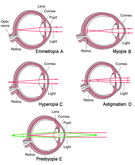 distinguish between myopia and hyperopia and Differentials conditions  retinoscopy can easily distinguish between simple myopia,  retinoscopy can easily distinguish between simple hyperopia,.